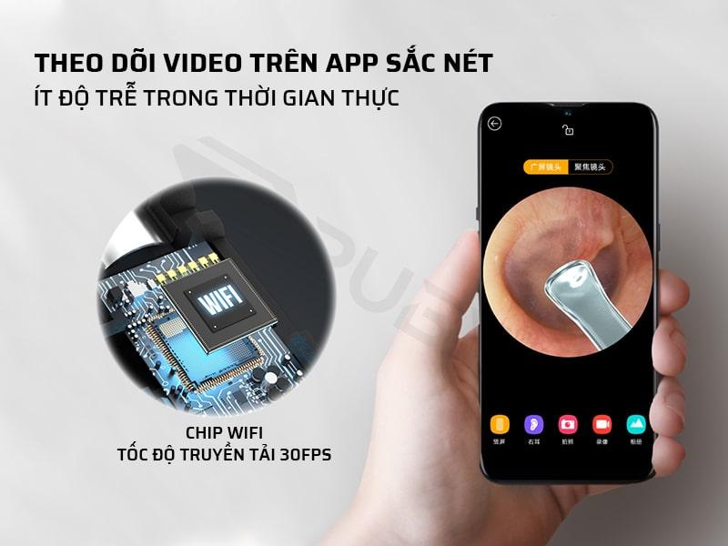 bộ dụng cụ lấy ráy tai theo dõi video trên app sắc nét