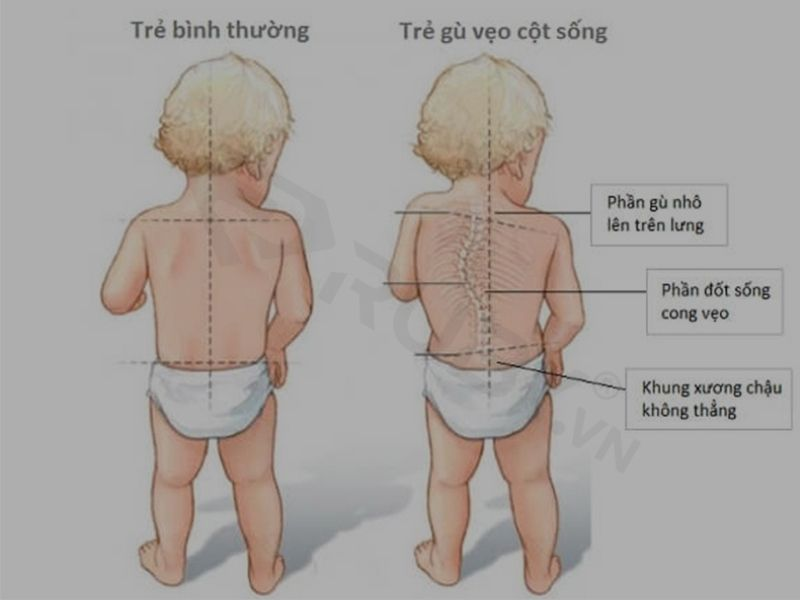 Gù lưng ở trẻ em là như thế nào?