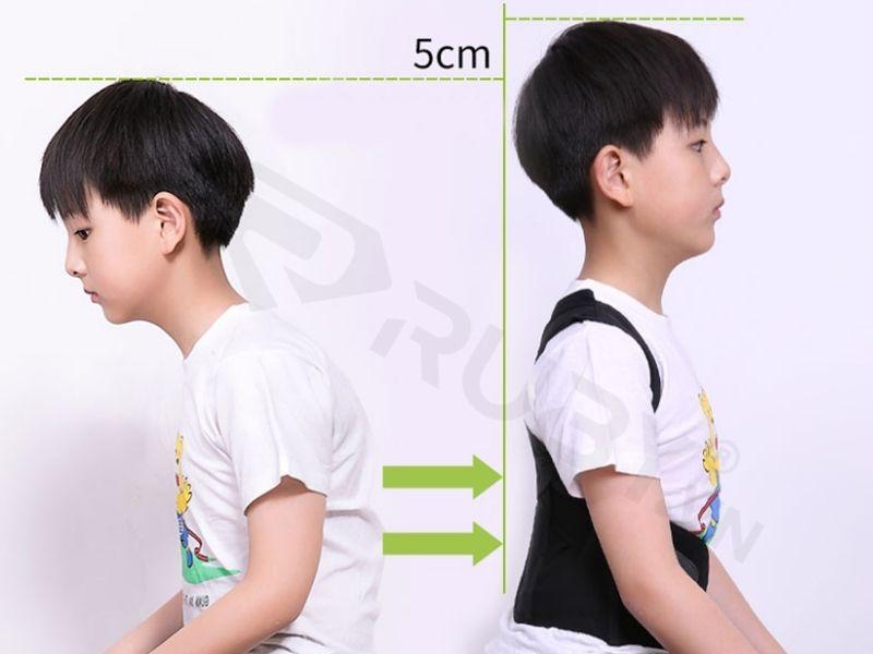 chống gù lưng ở trẻ
